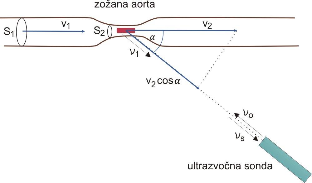 ultrazvočno merjenje hitrosti krvi